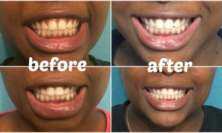 5 ways to get white and shining teeth with Gifty David! #lunchtimejollification